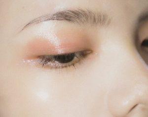 Få lækker hud med hjælp fra lokal skønhedsklinik